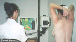 Breast Thermography by Meditherm®